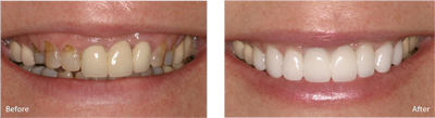 cosmetic_dentistry_before_after